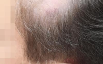 Mikropigmentacja skóry głowy w łysieniu plackowatym